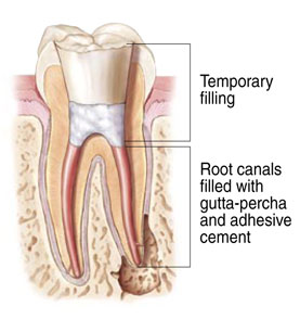 Root Canal Therapy at Michael B. Litchfield, DMD, Family Dentistry